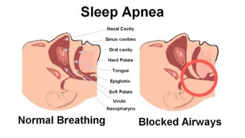 The basis of sleep apnea